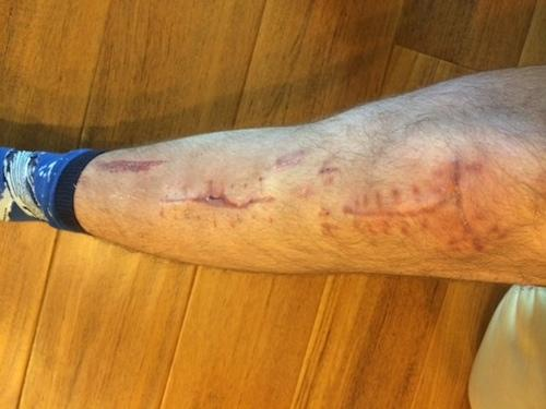 Leg like a battlefield, courtesy Aaron Simon.
